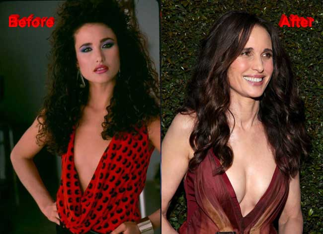 Andie McDowell Plastic Surgery – Did She Really Undergoes The Cosmetic Surgery?