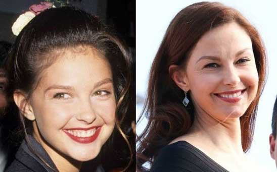 Ashley Judd Plastic Surgery – She Managed To Procure The Beauty Escalation