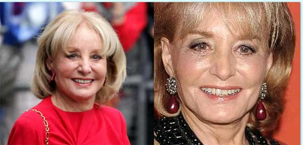 Did Barbara Walters Really Undergoes The Knife Work?