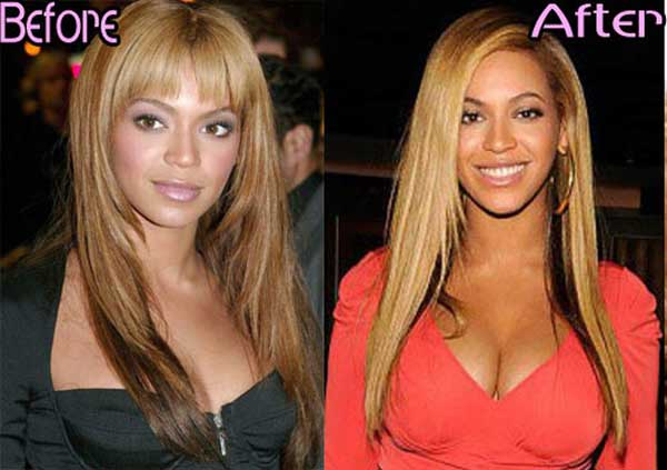 Has Beyonce Had Plastic Surgery? Were The Rumors True?