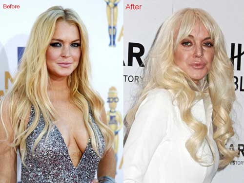 Lindsay Lohan Scandals – A Knife Work Ruining Her Beauty And Career