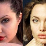The Beauty Transformation of Angelina Jolie – A Remarkable Change through Knife work