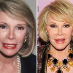 Joan Rivers Transformation – Did She Really Have The Knife Work?