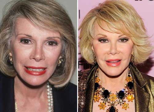 joan-rivers-face