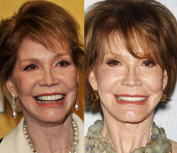 Mary Tyler Moore Before And After Plastic Surgery – An Artist Running For Eternal Beauty